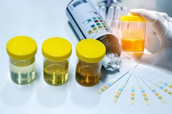 Bệnh nhân cần làm xét nghiệm nước tiểu