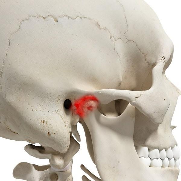 Đau quai hàm do TMJ