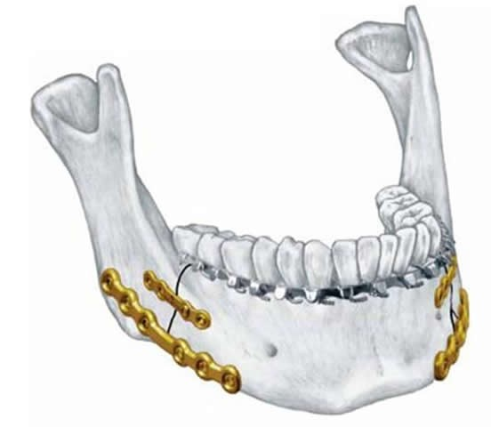 điều trị gãy xương hàm dưới bằng nẹp vít