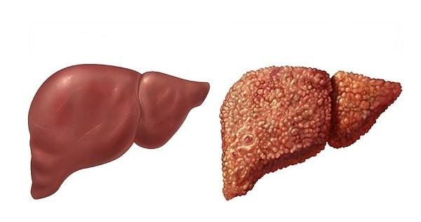 Gan bình thường (bên trái) và gan xơ (bên phải)