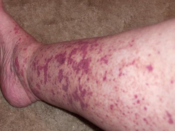 Những ban xuất huyết xuất hiện trên chân