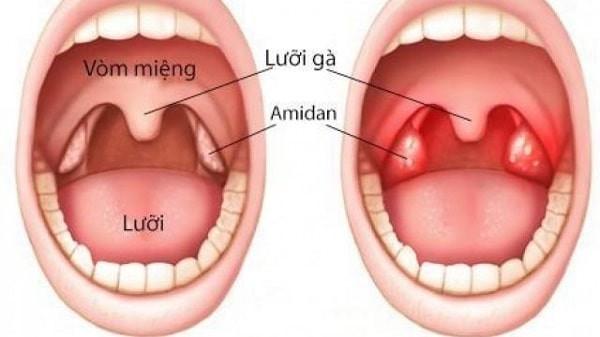 Cấu trúc khoang miệng