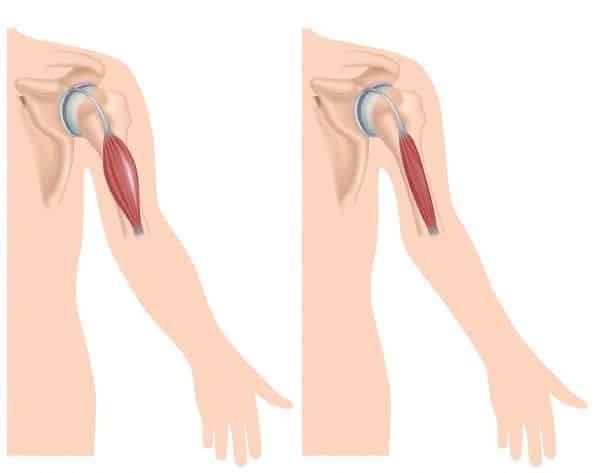 Bên trái là hình ảnh của cơ vùng cánh tay bình thường. Bên phải là hình ảnh cơ trên bệnh nhân loạn dưỡng cơ