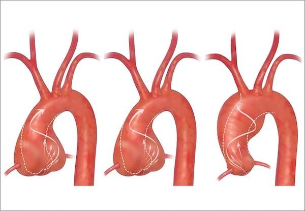 Van động mạch chủ hai lá