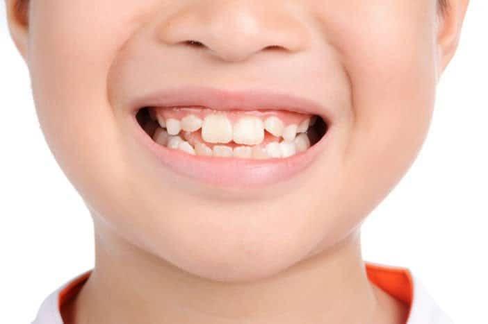 Tình trạng răng mọc lệch ở trẻ em