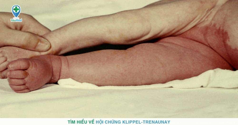 Tìm hiểu về hội chứng Klippel-Trenaunay