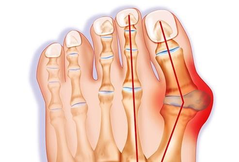 biến dạng ngón chân cái