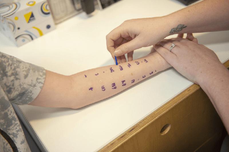 Test lẩy da dùng để xác định dị ứng với những tác nhân thường gặp.