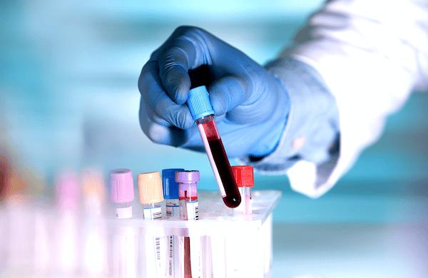 Xét nghiệm nồng độ canxi máu giúp chẩn đoán