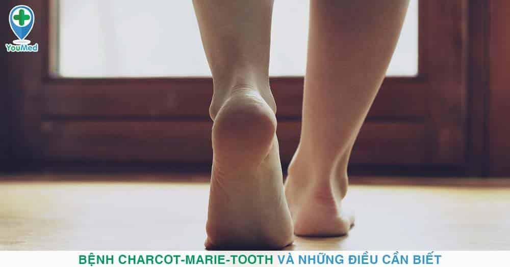 Bệnh Charcot-Marie-Tooth và những điều cần biết