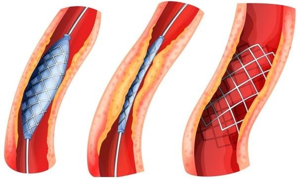 Phẫu thuật tái thông mạch máu