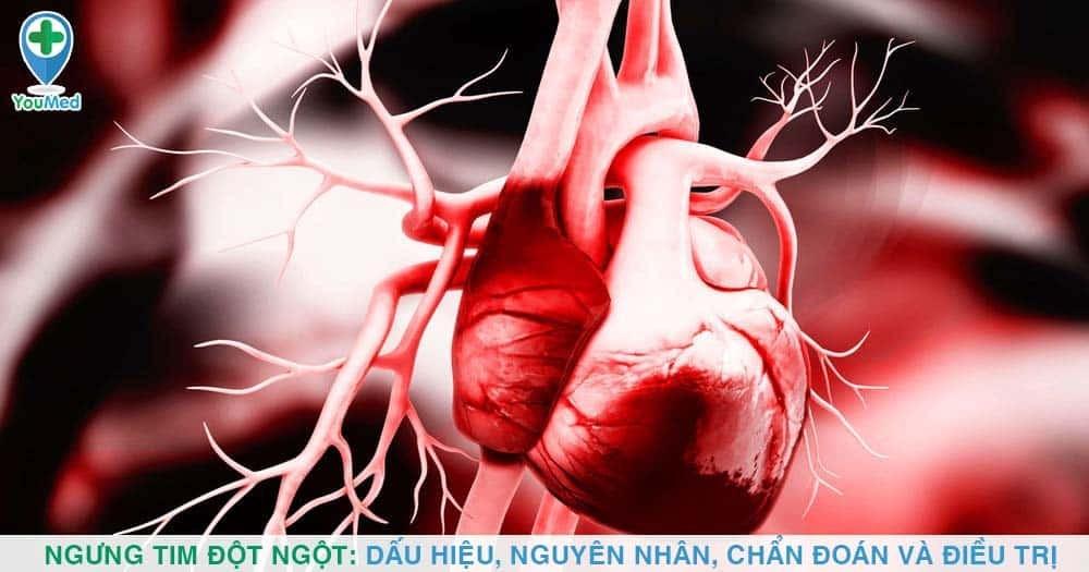 Ngưng tim đột ngột: Dấu hiệu, nguyên nhân, chẩn đoán, điều trị