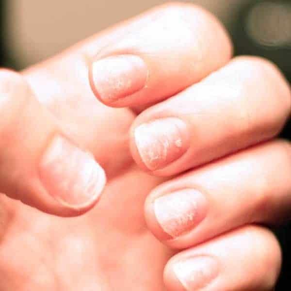 Móng tay dễ gãy là một trong những triệu chứng của hạ canxi máu