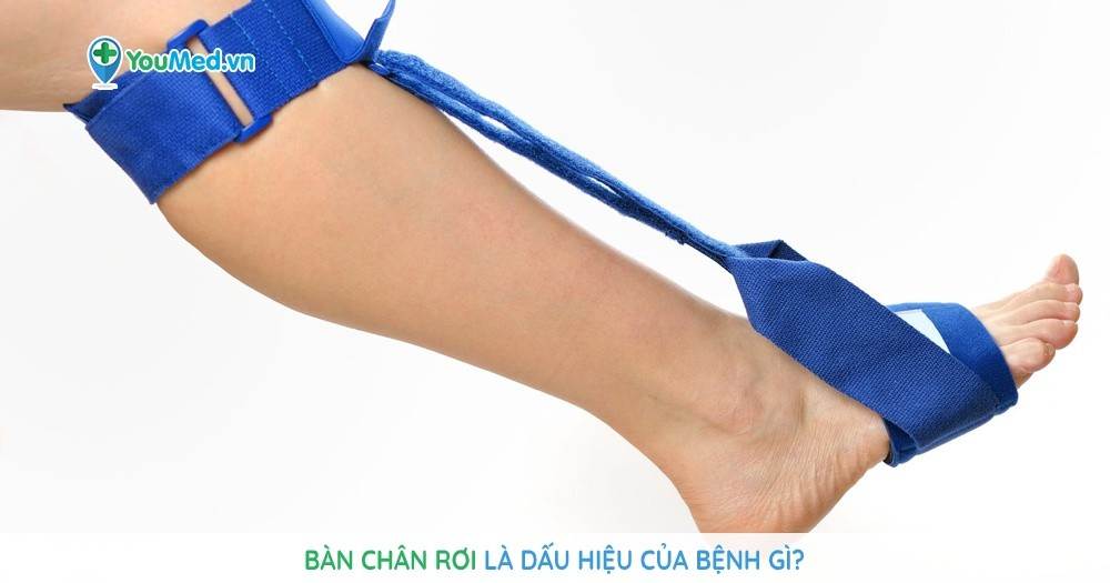 Bàn chân rơi là dấu hiệu của bệnh gì?