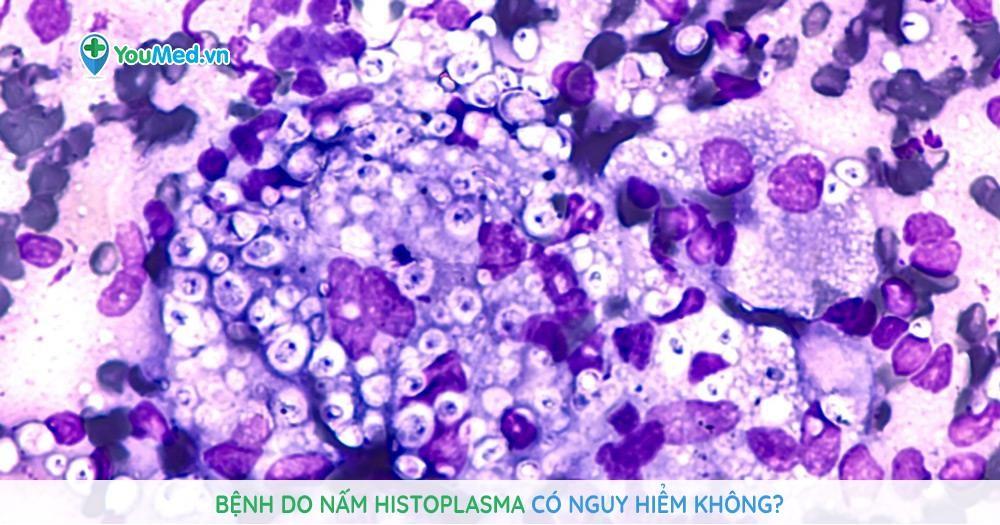 Bệnh do nấm Histoplasma có nguy hiểm không