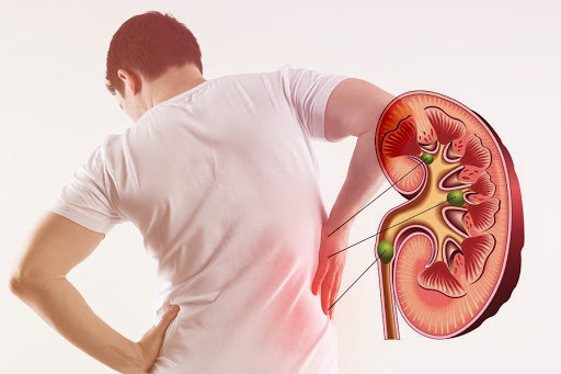 Bệnh thận có thể dẫn đến tăng ure trong máu