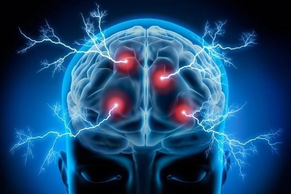 Bệnh động kinh có thể gây ra hiện tượng Déjà vu