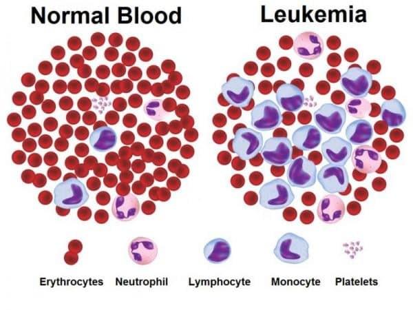 Bệnh Leukemia có thể được điều trị bằng máu cuống rốn