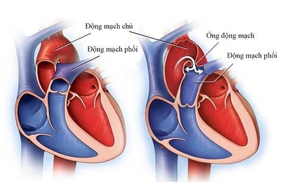 Các động mạch chính