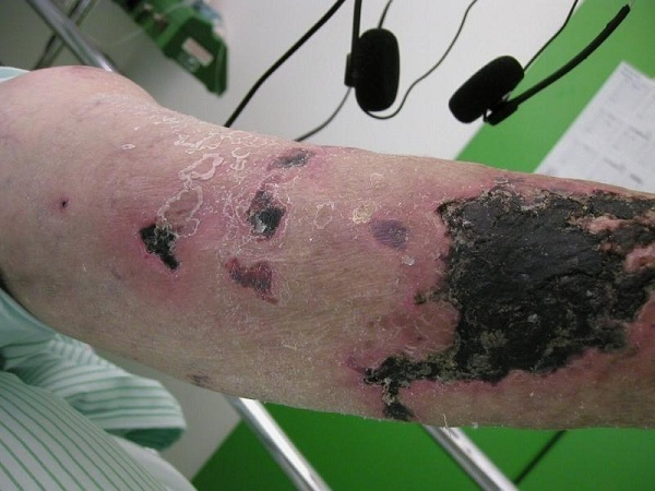Calciphylaxis-1