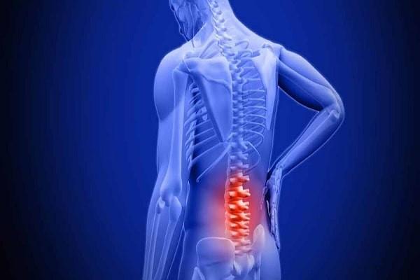 Bệnh căng cơ thắt lưng