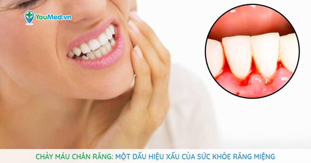 Chảy máu chân răng: Một dấu hiệu xấu của sức khỏe răng miệng