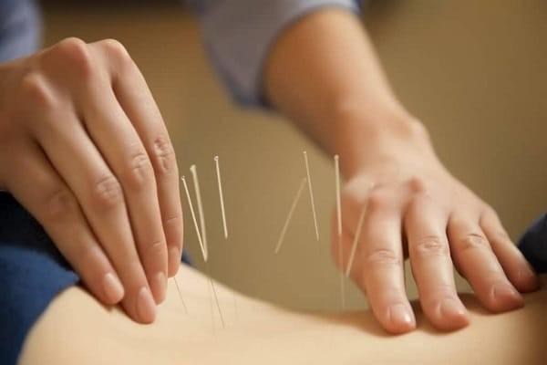Châm cứu có thể giúp điều trị các bệnh lý ở nhóm cơ dựng sống
