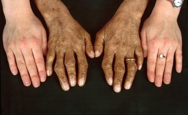 Da bị sạm đen là biểu hiện của bệnh Addison