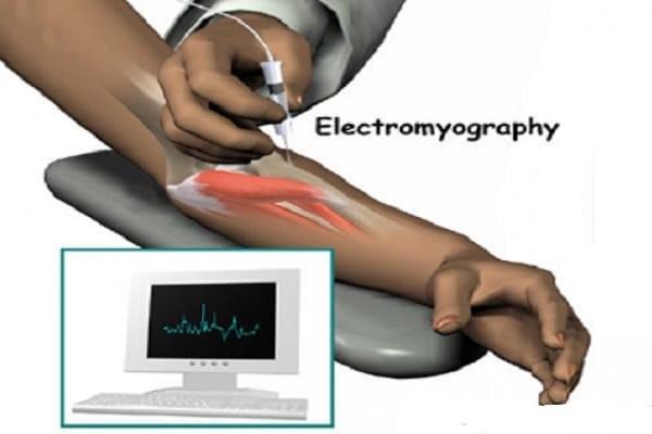 Xét nghiệm điện cơ EMG