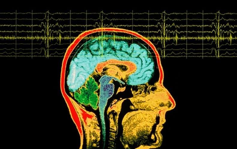 Điện não đồ (EEG)