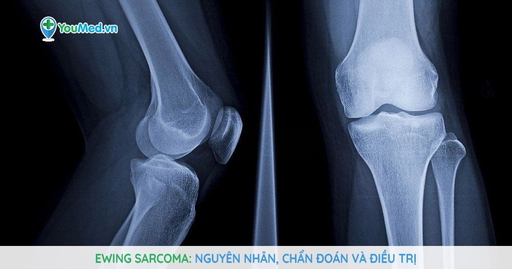 Ewing sarcoma: Nguyên nhân, chẩn đoán và điều trị