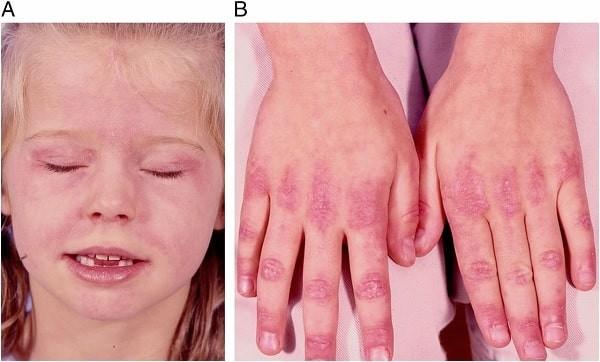 Phát ban ở các đốt ngón tay có thể gặp trong bệnh mô liên kết hỗn hợp