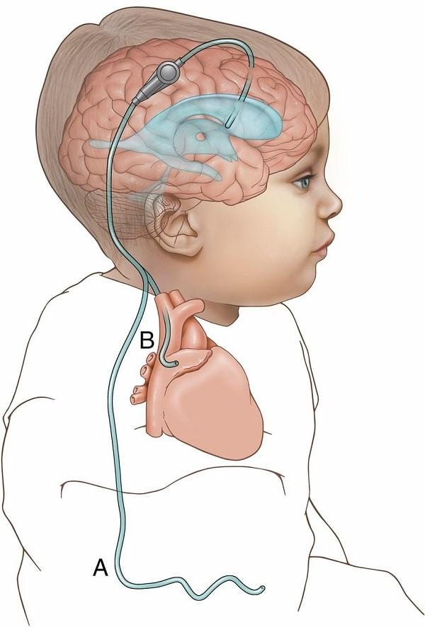 Nếu có não úng thủy, ống dẫn lưu có thể được đặt để thoát dịch não tủy