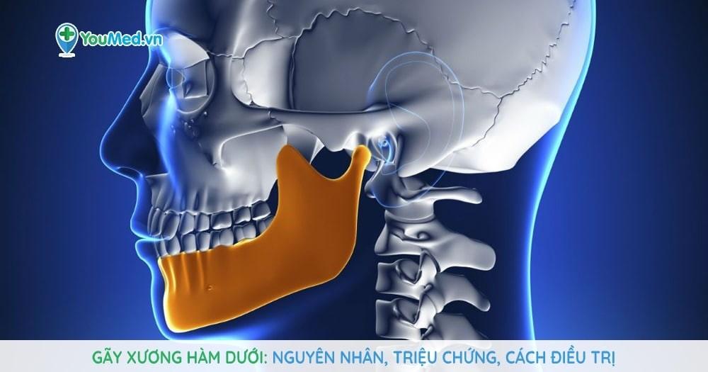 Gãy xương hàm dưới - Nguyên nhân, triệu chứng, cách điều trị