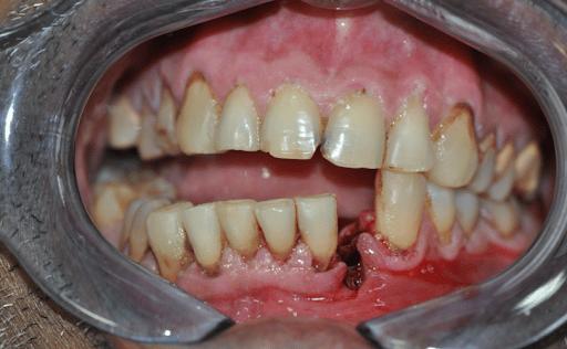 Gãy xương hàm dưới vùng cằm làm gián đoạn cung răng