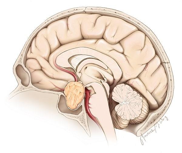 U tuyến yên là một ung thư vùng đầu mặt cổ khá thường gặp