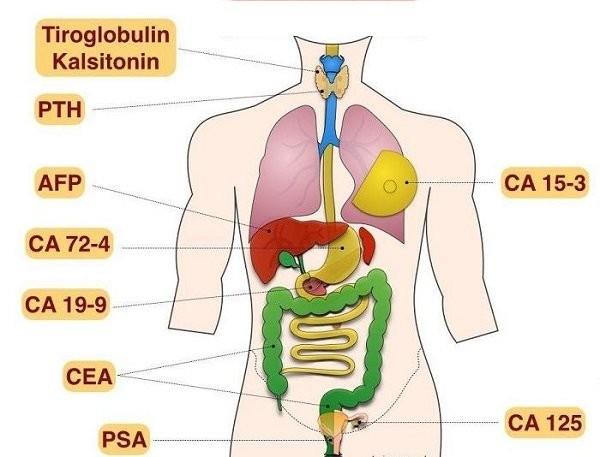 Kháng nguyên CA 15-3 biểu hiện trong ung thư tế bào tuyến vú