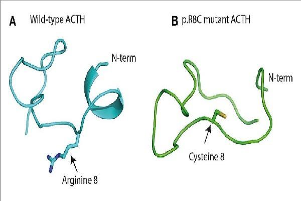 Hình ảnh Khối u tiết ACTH có thể dẫn đến hội chứng Cushing