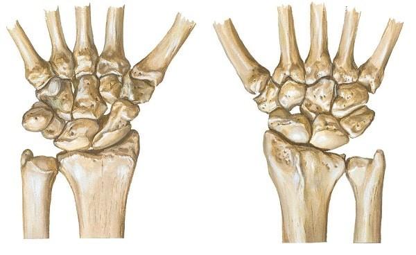 Minh họa khối xương cổ tay