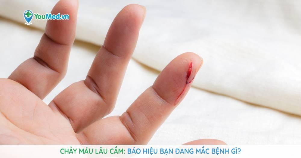 Chảy máu lâu cầm: Báo hiệu bạn đang mắc bệnh gì?