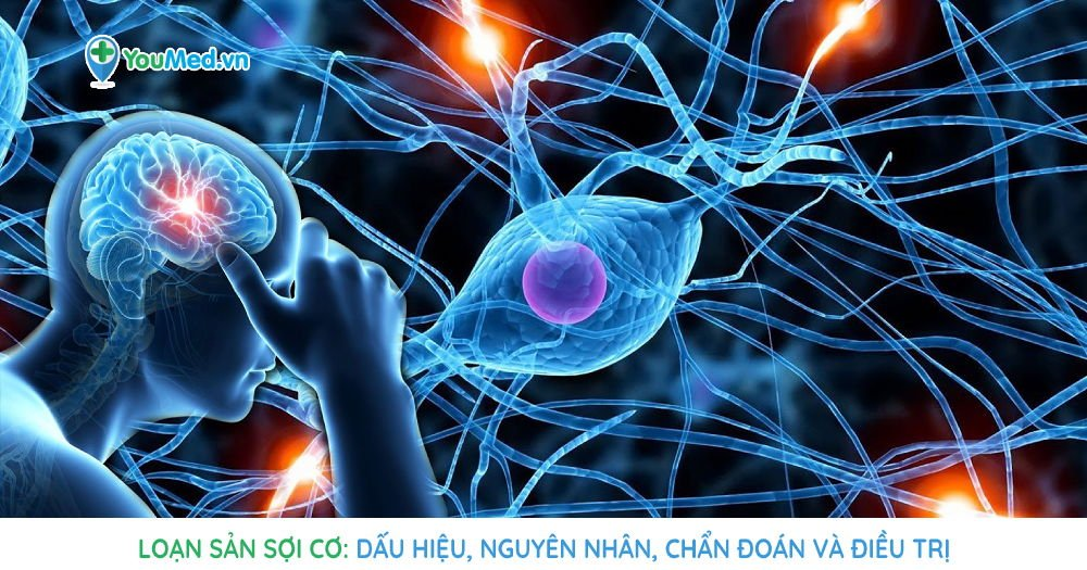Loạn sản sợi cơ: Dấu hiệu, Nguyên nhân, Chẩn đoán và Điều trị