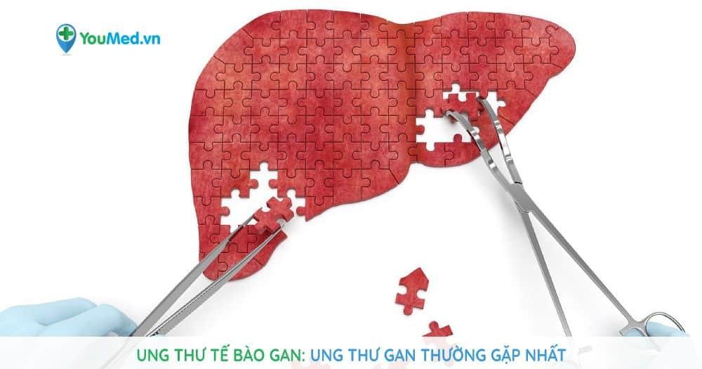 Ung thư tế bào gan: Ung thư gan thường gặp nhất
