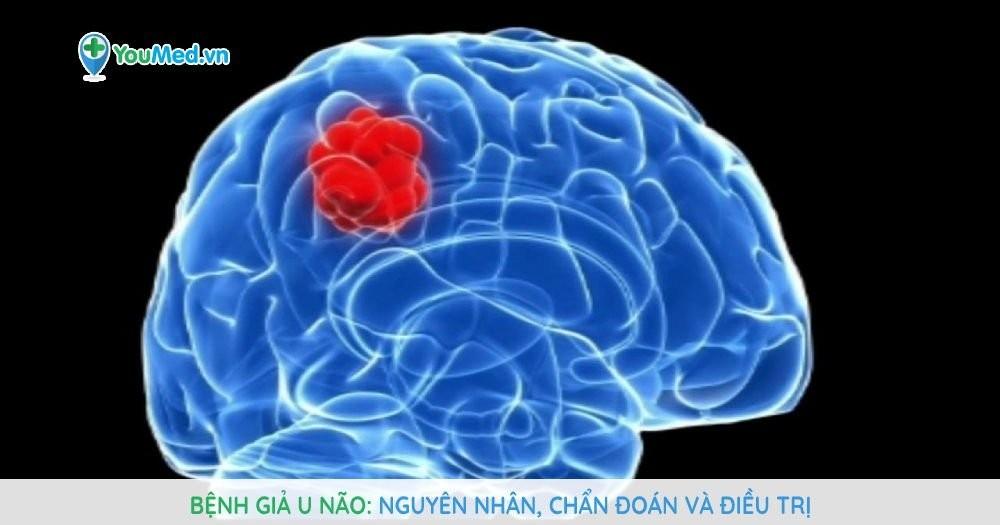 Bệnh giả u não: Nguyên nhân, chẩn đoán và điều trị