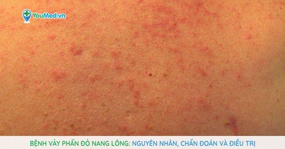 Bệnh vảy phấn đỏ nang lông: Nguyên nhân, chẩn đoán và điều trị
