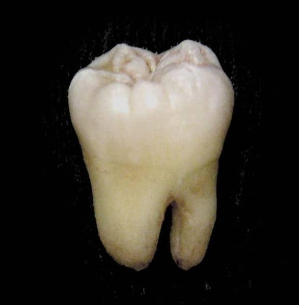 Một trong những hình thể của răng khôn hàm dưới