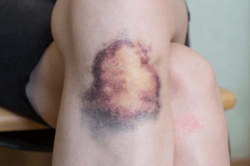 Triệu chứng của hội chứng rối loạn sinh tủy