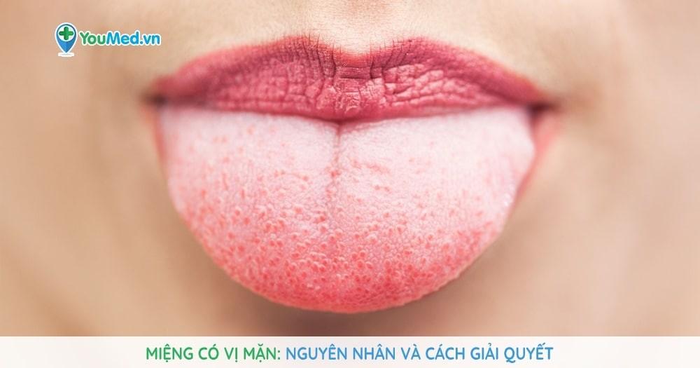 Miệng có vị mặn: Nguyên nhân và cách giải quyết