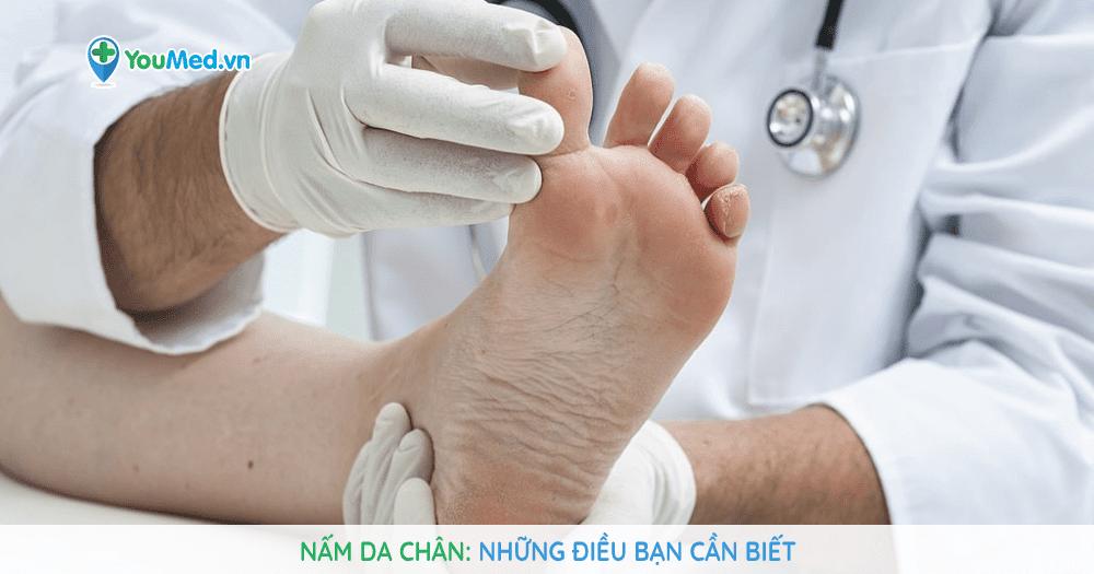 Nấm da chân: những điều bạn cần biết