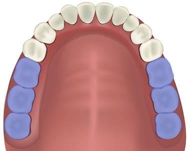răng cối lớn
