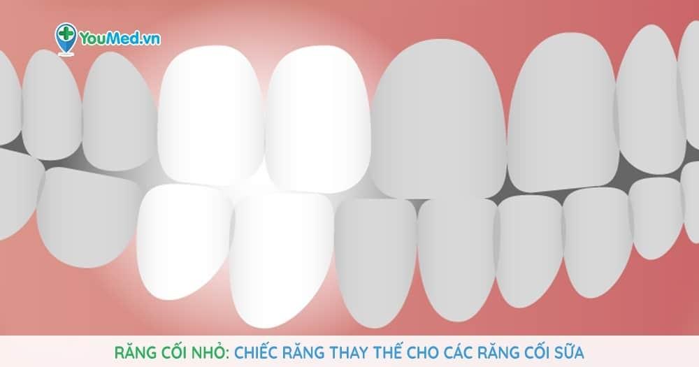 Răng cối nhỏ - Chiếc răng thay thế cho các răng cối sữa